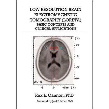 Low Resolution Brain Electromagnetic Tomography (LORETA) by Rex Cannon (Front Cover)