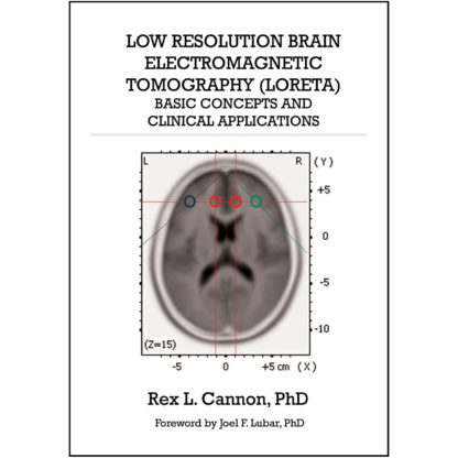 Low Resolution Brain Electromagnetic Tomography (front cover)